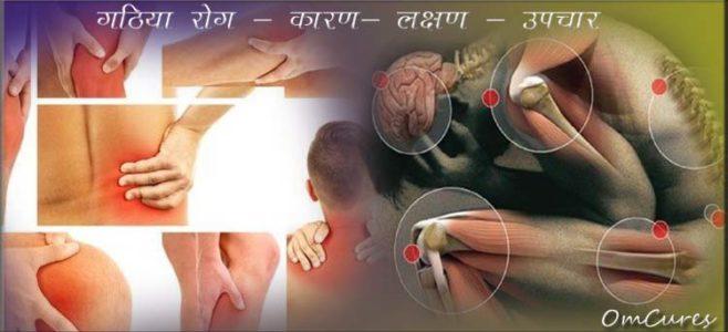 gathiya rog upchar